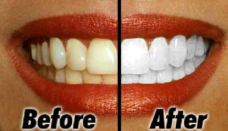 8 cách làm răng trắng hơn