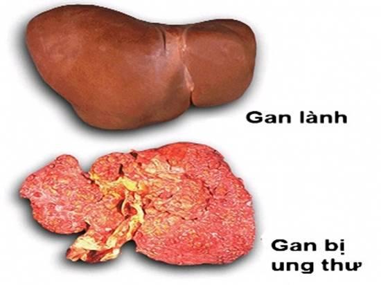 Người mắc bệnh ung thư gan cần ăn kiêng như thế nào ?