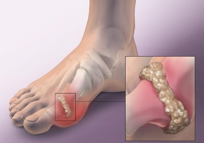 Bệnh xương khớp trung niên 6