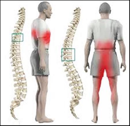 Thoát vị đĩa đệm - Căn bệnh xương khớp phổ biến ở người già