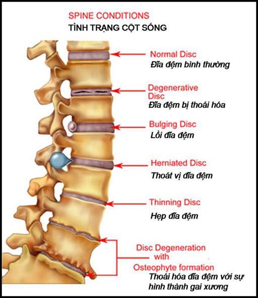 Các bệnh xương khớp thường gặp ở người già