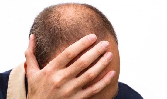 Giải pháp nào kích thích mọc tóc cho người bệnh hói