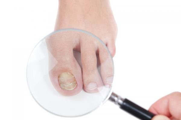 Biện pháp phòng tránh bệnh nấm móng tay, móng chân