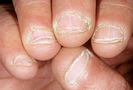 Hình 6: Bệnh nấm móng tay, móng chân hiếm khi tự khỏi mà không qua can thiệp. Ngày nay có rất nhiều loại thuốc bôi hoặc uống thích hợp vời từng loại nấm và tình trạng của từng bệnh nhân, vì vậy, bạn hoàn toàn có thể yên tâm chữa trị hiệu quả.