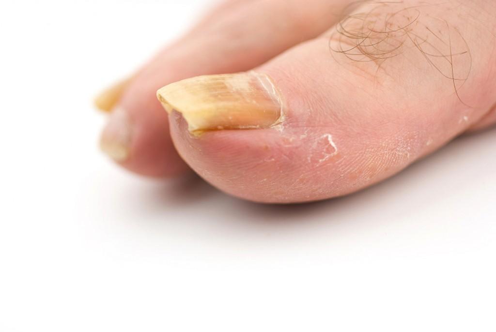 Hình 4: Nấm móng ở mức độ nặng gây tình trạng viêm móng làm đau nhứt, có mủ và mùi hôi ở móng tay, móng chân.