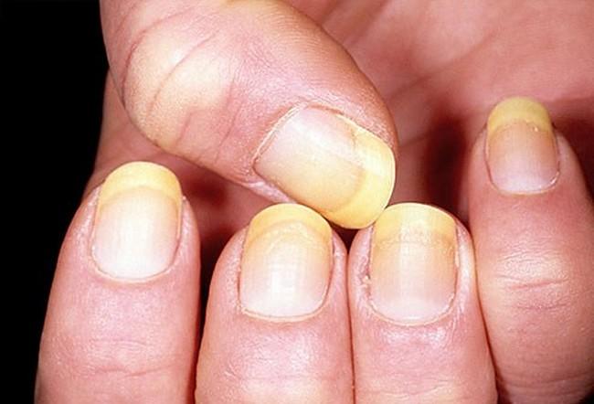 Bệnh nấm móng do loại nấm dermatophytes hay nấm men, nấm mốc gây nên. Nấm vốn là những sinh vật nhỏ sống ký sinh gây ra bệnh tật và nhiễm trùng cho vật chủ khi ký sinh vào, thường gặp ở móng tay, móng chân và cả tóc người.
