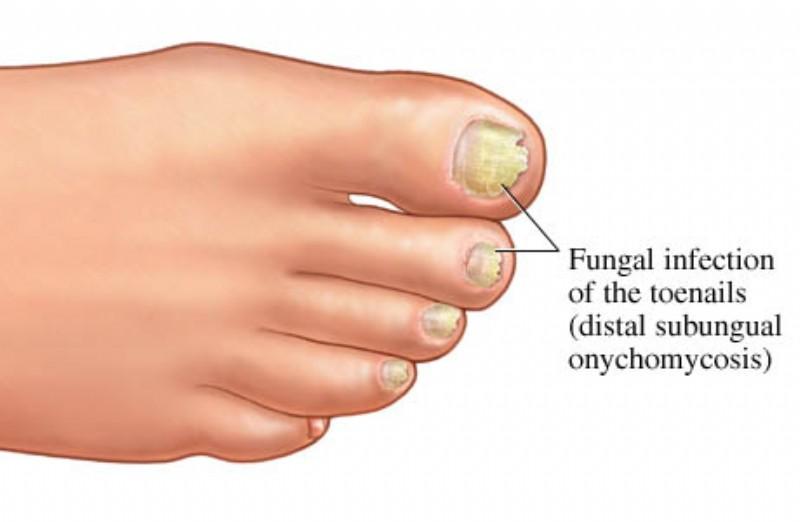 Hình 3: 4 triệu chứng thường gặp là: nấm trên bề mặt móng khiến móng đổi màu (trắng hoặc đen); nấm ở dưới móng khiến móng dày lên rồi viêm da quanh móng; nấm ở phần gốc móng; xuất hiện teo móng và lây lan ra các móng khác.