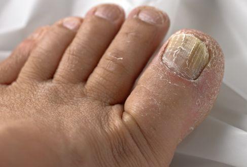 Hình 2: So với móng tay thì móng chân dễ nhiễm bệnh hơn do chân thường tiếp xúc với nơi bẩn hay ẩm mốc. Hơn nữa hoạt động tuần hoàn máu của chân cũng yếu hơn, nên hệ miễn dịch cũng không đủ sức để loại bỏ khuẩn nấm gây bệnh.