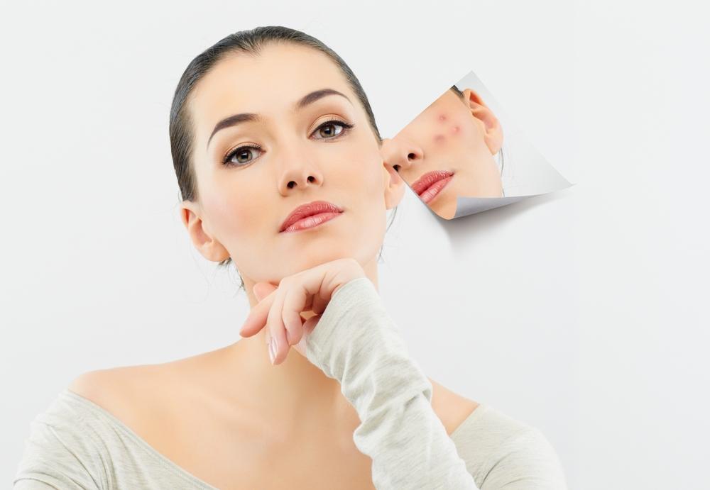 Spa trị mụn uy tín chất lượng hàng Đầu tphcm