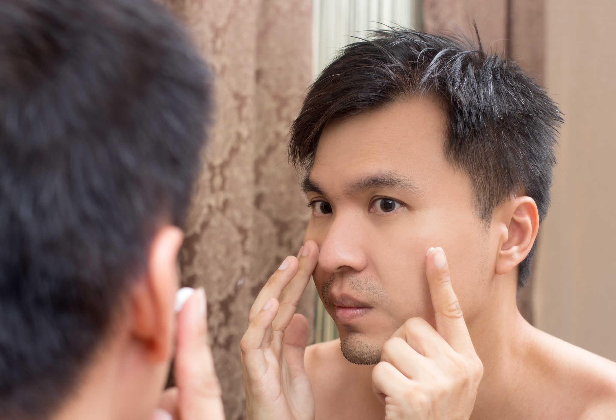 Spa trị mụn cho nam giới hiệu quả tốt nhất ở đâu tphcm?