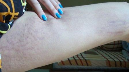 Kem trị rạn da mederma stretch marks – bí quyết làm đẹp hiệu quả!
