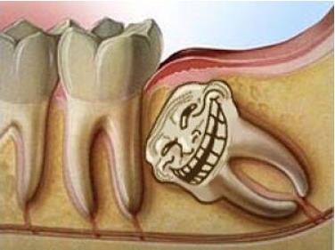 """Khi răng khôn mọc """"ngu"""""""