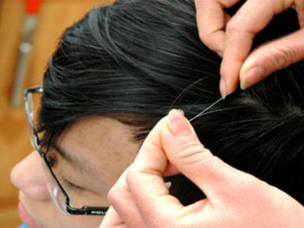 Bắt bệnh cho cơ thể qua tình trạng của tóc