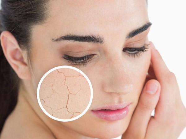 Cách ngăn chặn da khô hiệu quả nhất