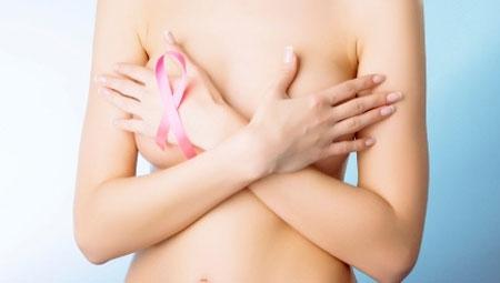 Ung thư vú và những hiểu lầm tai hại