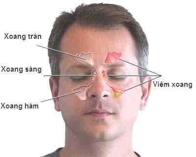 Một số thuốc thường dùng trong bệnh viêm mũi xoang