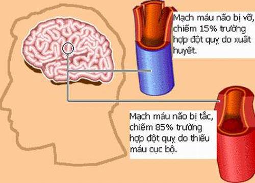 ăng lưu lượng tuần hoàn máu não giúp máu lưu thông lên não và tứ chi