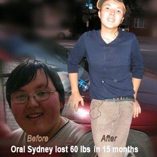 Hình ảnh đối chứng: Trước và sau khi sử dụng One XS Weight Loss Pills ở nam giới
