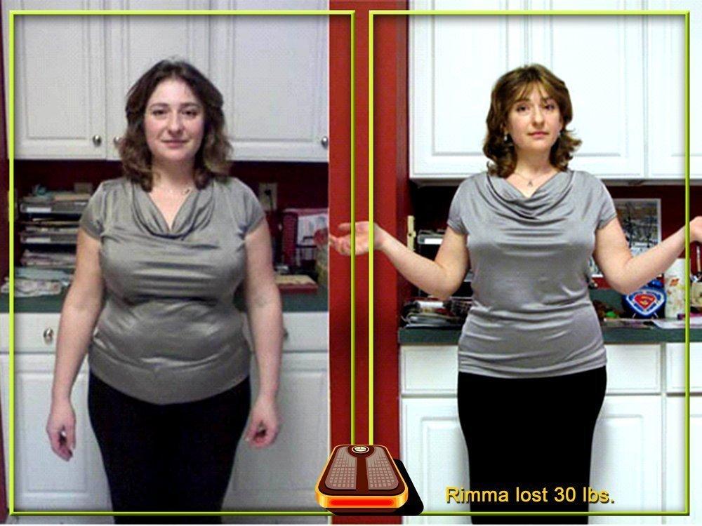 Hình ảnh đối chứng: Trước và sau khi sử dụng One XS Weight Loss Pills ở nữ giới