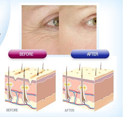 Tác dụng của Collagen lên làn da bị nhăn nheo và vết chân chim