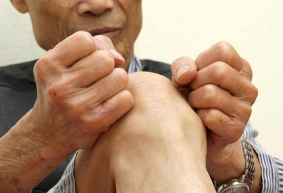 Bệnh xương khớp trung niên 7