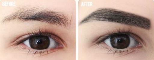 Các câu hỏi thường gặp về revitabrow ® eyebrow conditioner