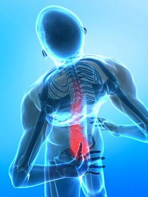 Hỗ trợ điều trị cũng như phòng ngừa các trường hợp đau lưng thoái hóa – gai đốt sống chèn ép thoát vị đĩa đệm nhẹ