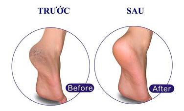 Kem trị nứt nẻ gót chân: neutrogena foot cream 56g