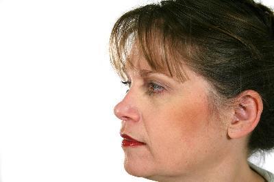 Collagen elastin dưỡng chất cần thiết chống lại quá trình lão hóa
