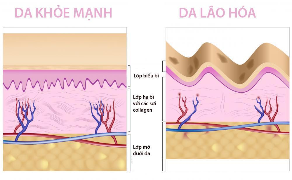 Cấu trúc Collagen quyết định sự mền mại, mịn màng hoặc thô ráp ở làn da của chính bạn