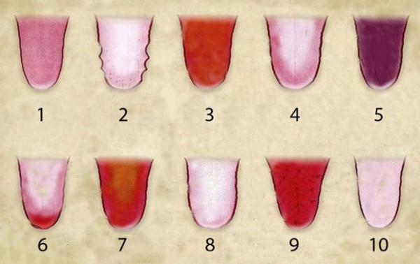 10. màu lưỡi nhợt nhạt