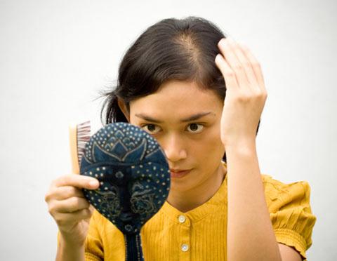Tình trạng rụng, hói tóc đang làm bạn lo lắng?