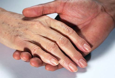 Bàn tay nhiều đồi mồi, đốm nâu làm mất đi vẻ tự tin của bạn?