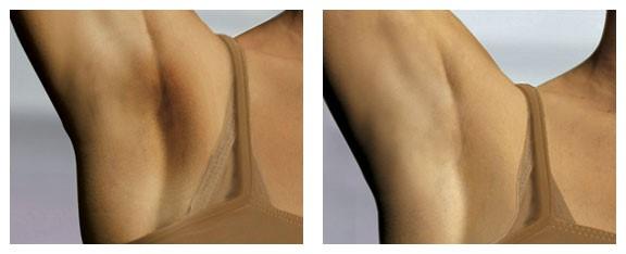 Trước và sau khi sử dụng Kem Daggett & Ramsdell under-arm lightening