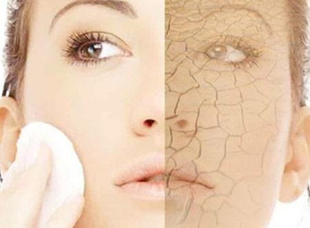 Vào những ngày mùa đông da bạn dễ bị khô, nứt nẻ