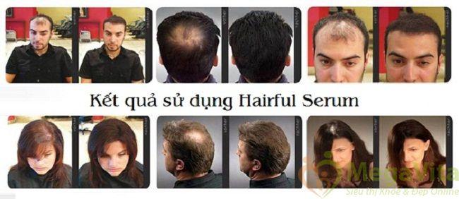Hairful serum 50ml: chống rụng tóc, kích thích mọc râu, tóc hiệu quả của mỹ