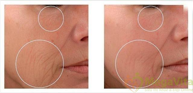 Tinh chất collagen 100% nature care nc24 bio-nano 10ml: bổ sung collagen, chống các dấu hiệu lão hóa