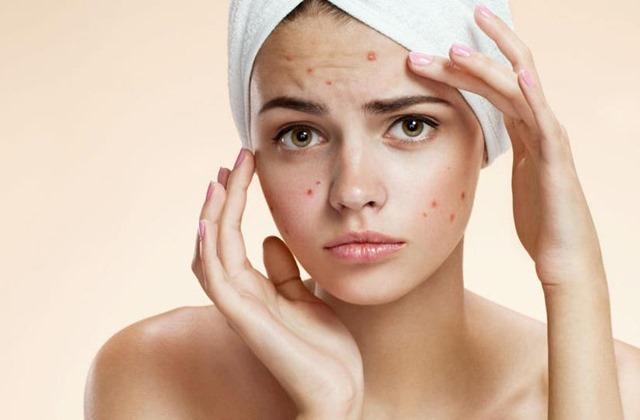 Viên uống trị mụn navan trueclear skin clarifying supplement